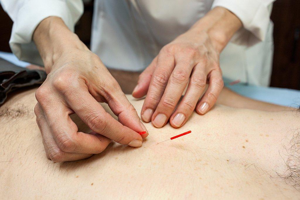 Acupuncture treatment on patient